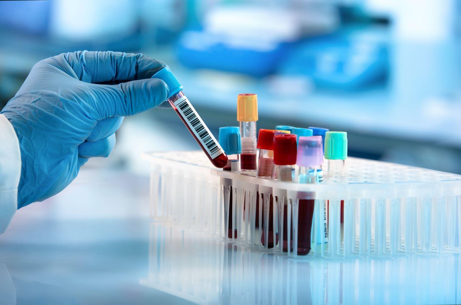معرفی رشته علوم آزمایشگاهی و خون شناسی و انگل شناسی و بیوتکنولوژی