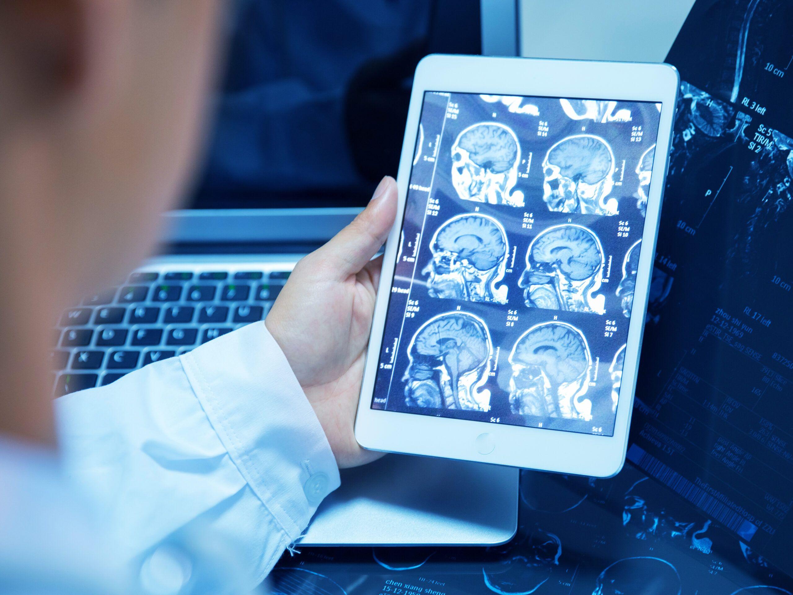 رشته رادیولوژی ارشد رادیولوژی و بورسیه رشته رادیولوژی