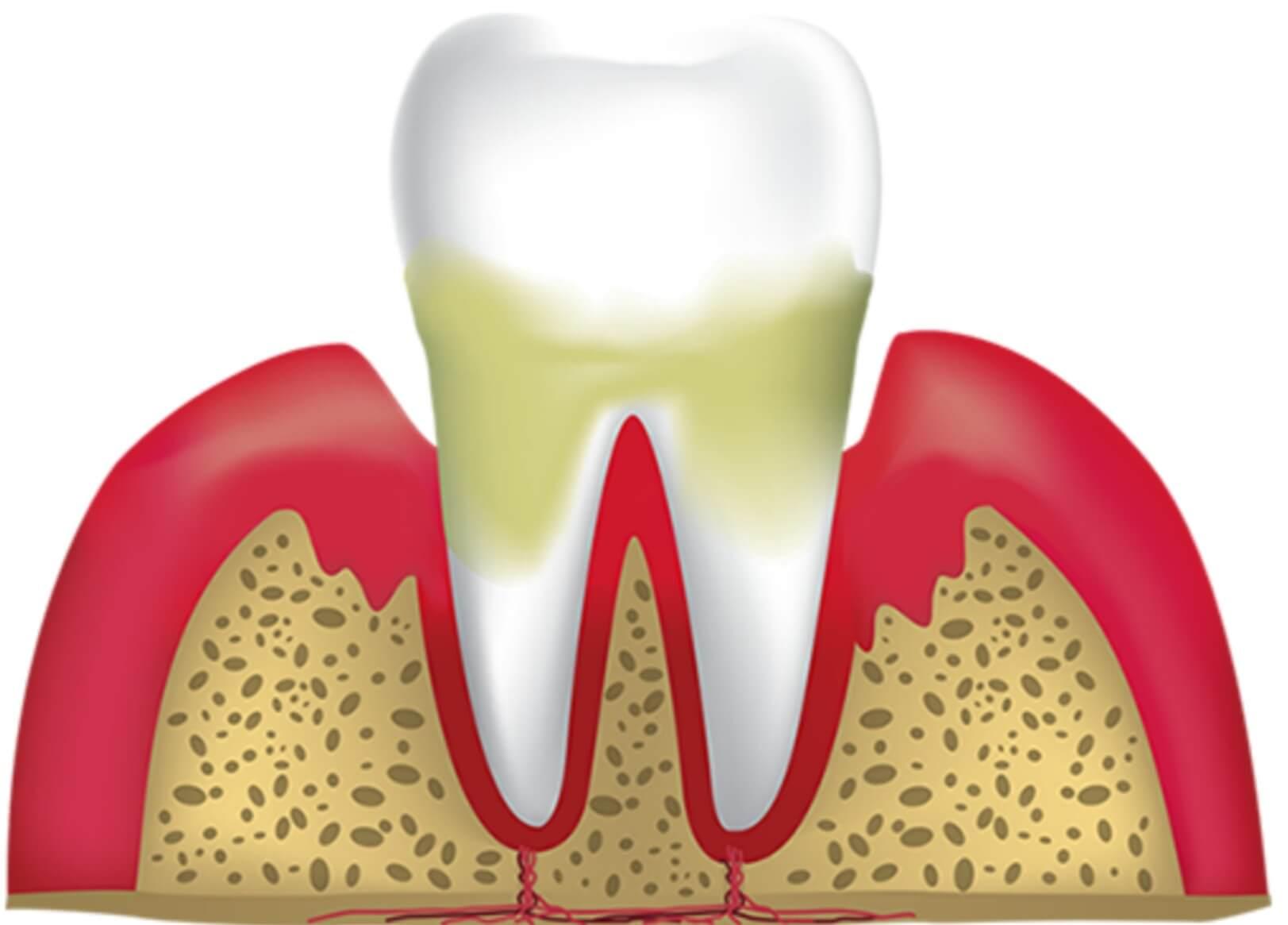 رشته پروتز های دندانی و بازار کار پروتز دندان