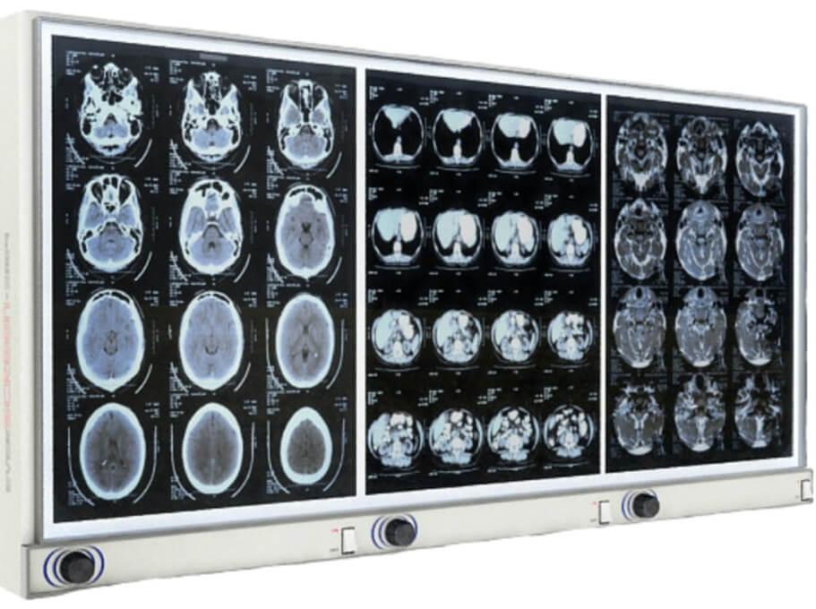 رشته رادیوتراپی و تکنولوژی پرتو درمانی